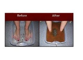 Before and after the Detox Foot Cleanse