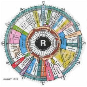 10 Conditions That Iridology Can Detect