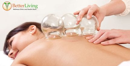 Why is cupping gaining in popularity?