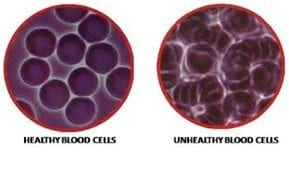 Live Blood Cell Analysis Etobicoke