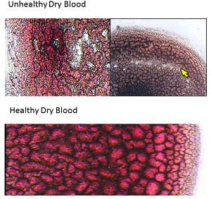 Dry (Layered) Blood Cell Analysis Etobicoke